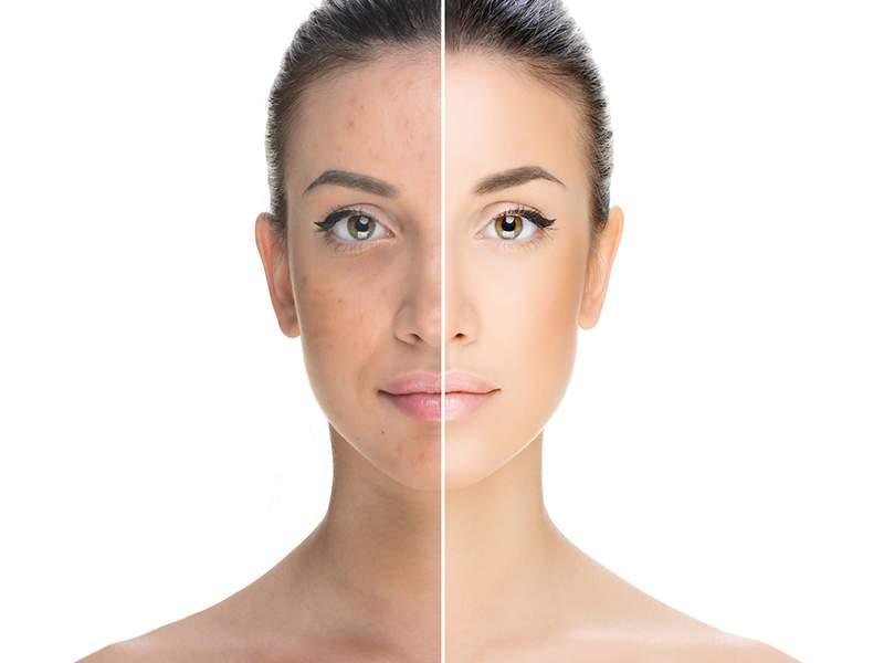 pelle del viso cura