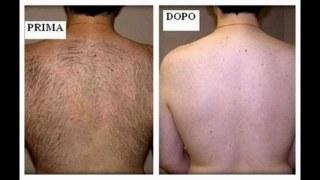 depilazione schiena uomo