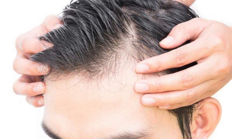 Calvizie: come intervenire per salvare i capelli dalla ...