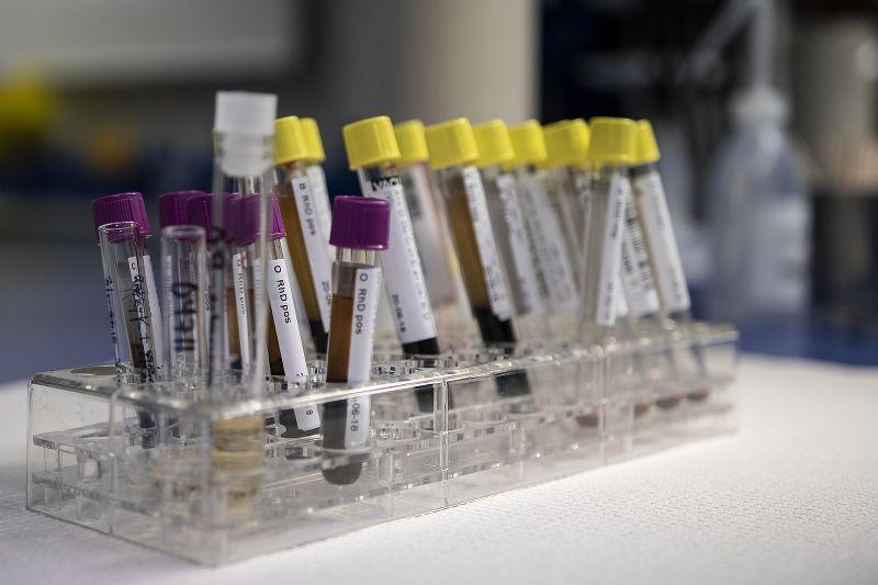 analisi del sangue ematocrito alto